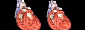Electrophysiologist Miami Photo Of Heart Failure