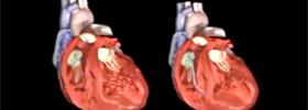 Electrophysiologist Miami Photo Of Heart Failure