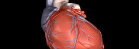 The full procedure of Cardiac Resynchronization or Bi-Ventricular device implant is presented in animated form.