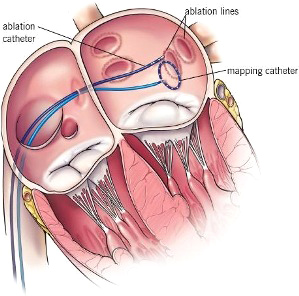 ablation catheter, ablation line, and mapping catheter illustration