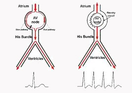 AV 2 Photo From Electrophysiologist Miami Website