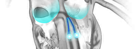 Electrophysiologist Miami Flash WPW Illustration