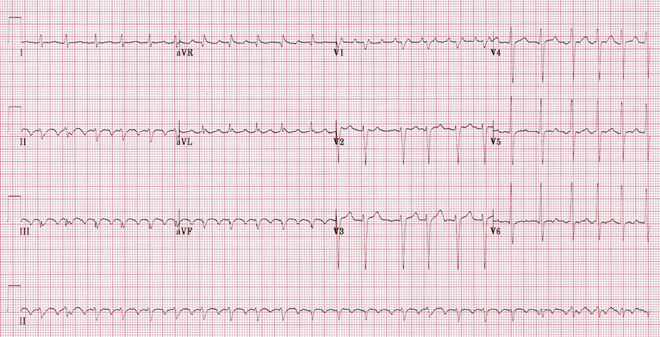 An Atrial Flutter creates an unpleasant fluttering sensation in the chest. Although it is not life-threatening, it should be treated to avoid its progression to a more serious type of arrhythmia, such as atrial fibrillation.